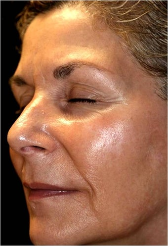 Fraxel - Melasma  before 652383