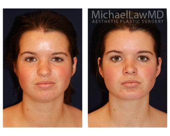 Chin Liposuction before 395814