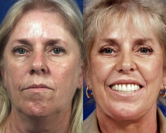 Botox with Facelift, Rhinoplasty, Laser Resurfacing, and Dermal Fillers before 555016