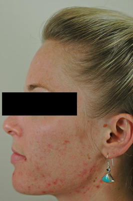 Laser Acne Treatment before 82951