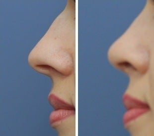 Rhinoplasty before 555764