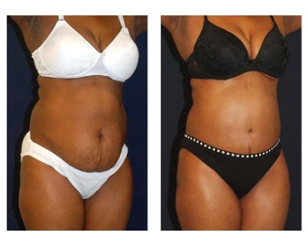 Tummy Tuck / Abdominoplasty before 55003