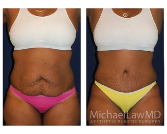 Abdominoplasty - Tummy Tuck before 396144