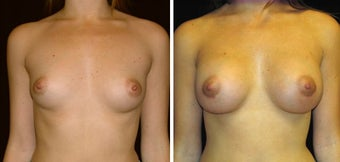 28 year old female, breast augmentation before 628316