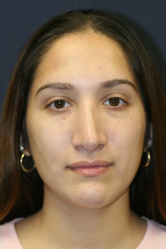 Rhinoplasty and Septoplasty after 527291