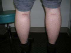 Calf Implants after 258997