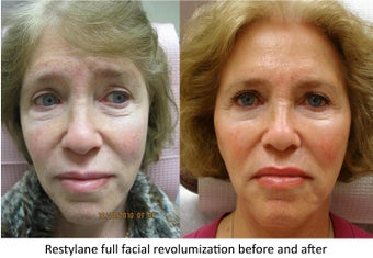 Restylane full facial rejuvenation before 390170