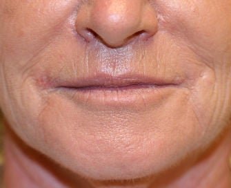 Lip lift, corner of lip lift after 299923