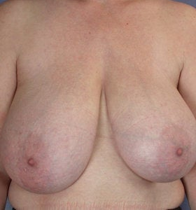 Breast Reduction before 285318