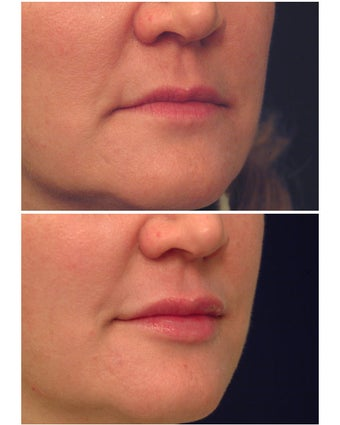 Injectable Filler before 149358