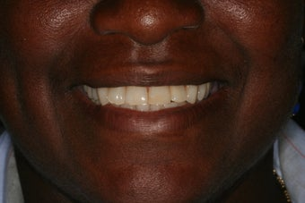 Full mouth reconstruction, smile makeover after 458449