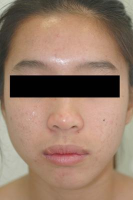 Laser Acne Treatment after 82970