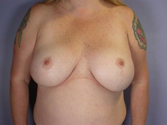 Breast Lift / Breast Augmentation after 291096
