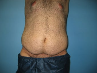 Male tummy tuck before 448698