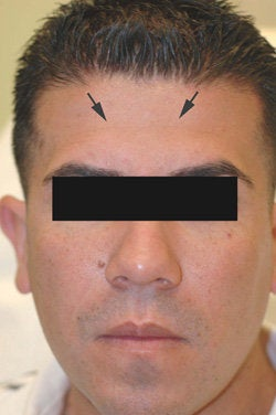 Botox treatment for forehead after 91060
