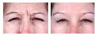 Botox for expression lines before 6326