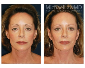 Facial Rejuvenation before 393316