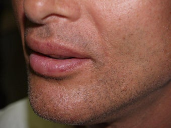 Lip Augmentation after 213005