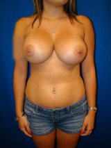 Revision Breast Surgery after 357104