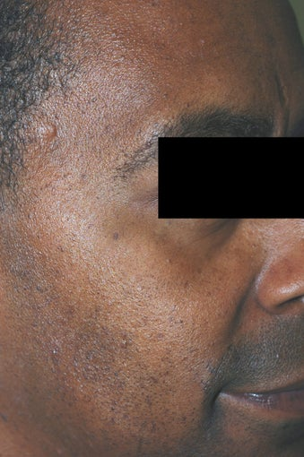 Los Angeles Mole Removal - Dermatosis Papulosa Nigra after 542716