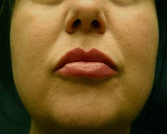 Juvederm Lip Augmentation after 624797