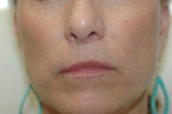 Restylane Treatment for lips before 91062
