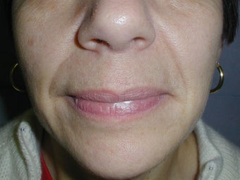 Restylane for smile lines (nasolabial folds) before 100945