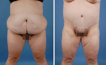 Bilateral Lower Body Lift and Liposuction before 303678