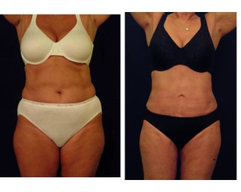 Liposuction before 397056