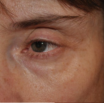 Restylane Injection into the Tear Troughs before 271678