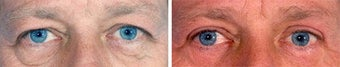 Blepharoplasty before 643236