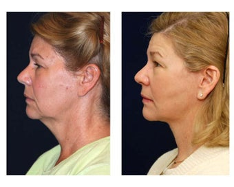Lower Face and Neck Lift after 355159