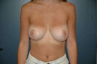 Breast reduction after 361104