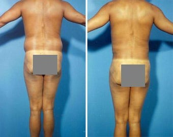 Liposuction before 636264