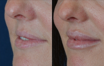 Lip Augmentation after 511369