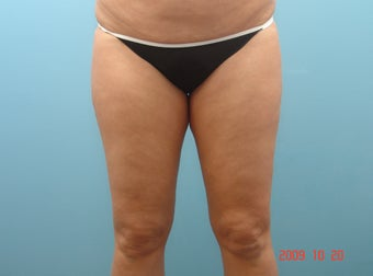 Inner Thigh Smart Liposuction before 426370