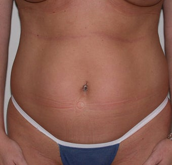 Liposuction before 313778