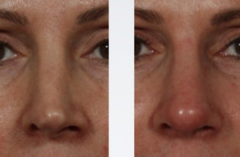 Revision Rhinoplasty after 358999