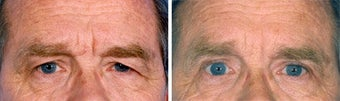 Blepharoplasty before 643241