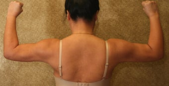 liposuction of arms for women 583554