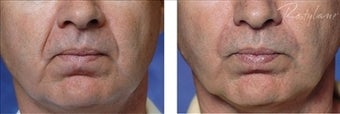 Restylane (Filler) before 110124
