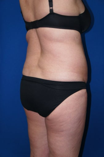 Liposuction 612610