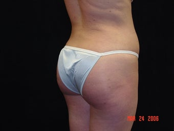 Brazilian Buttocks Lift  after 145513