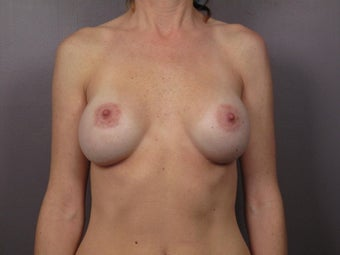 Breast Implant Revision before 622829