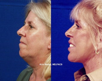 Restylane  with Facelift, Rhinoplasty, and Laser Resurfacing before 545115