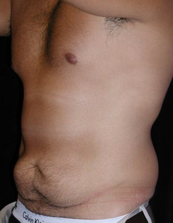 Male tummy Tuck, Flank Liposuction 578169