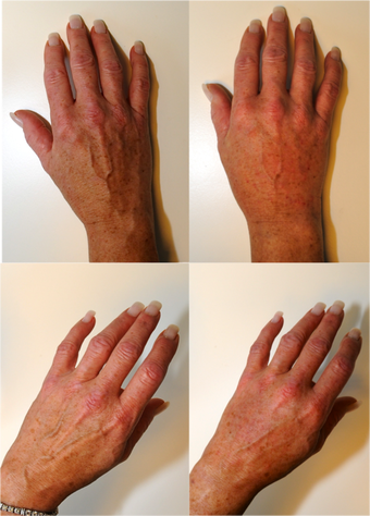 Hand Rejuvenation before 127114