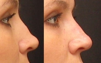 Non Surgical Nose Job before 261549