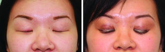 Double Eyelid Surgery Suture after 548933
