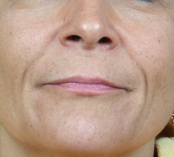 Radiesse treatment for nasolabial folds before 124912